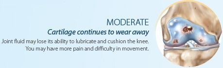 Moderate Knee